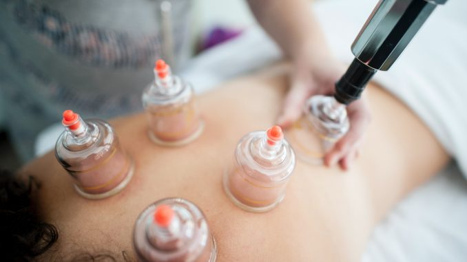 Hijama treatment cupping therapy benefits